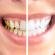 Wybielanie zębów lampą
