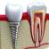 Dlaczego warto wybrać implanty zębów?