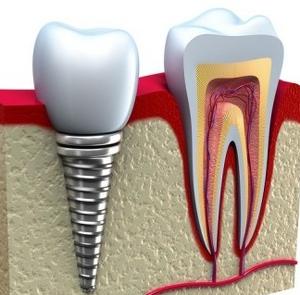 implantologia, implanty zębów Wrocław
