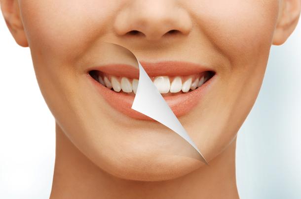 wybielanie zębów wrocław, higienizacja jamy ustnej, stomatologia estetyczna